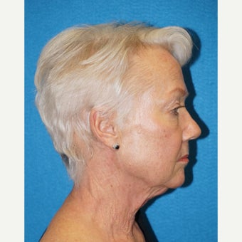 67 year old woman treated with Facelift