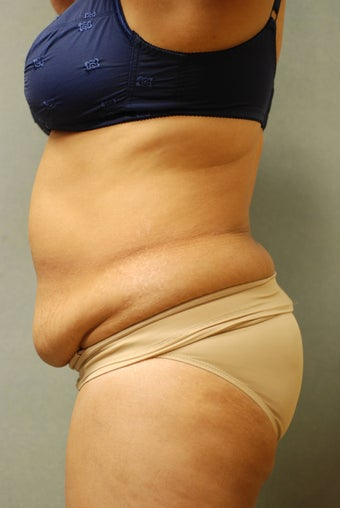 51 Year Old Female Treated for UnWanted Fat With SmartLipo and Vaser Laser before 839642