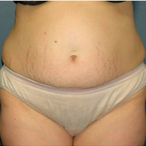 40 year old woman treated with Tummy Tuck before 3578615