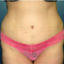 40 year old woman treated with Tummy Tuck after 3578615