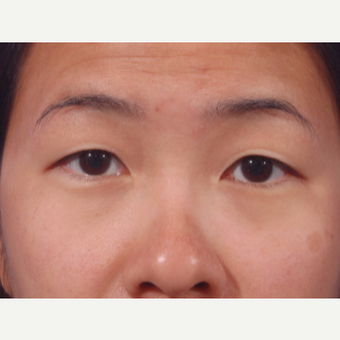 29 year old woman treated with Asian Eyelid Surgery (Double eyelid) before 3803240