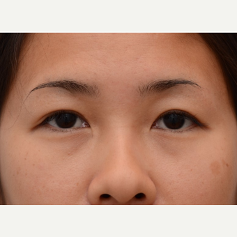 29 year old woman treated with Asian Eyelid Surgery (Double eyelid) after 3803240