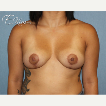 25-34 year old woman treated with Breast Lift after 3663328