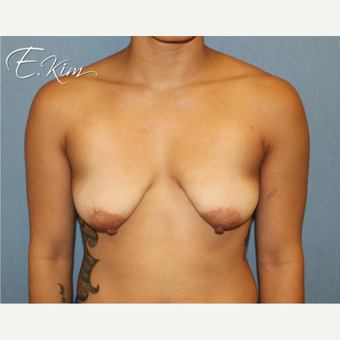 25-34 year old woman treated with Breast Lift before 3663328