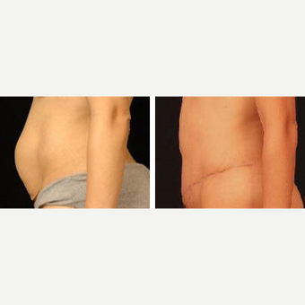 25-34 year old woman treated with Tummy Tuck after 3658561
