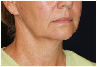 Lower Facial Rejuvenation before 1010743