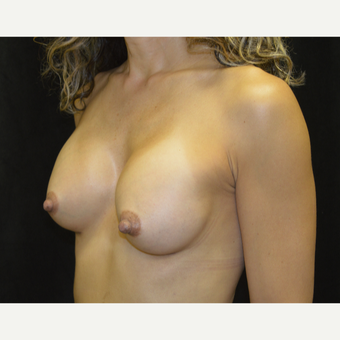 45-54 year old woman treated with Breast Augmentation after 3418132