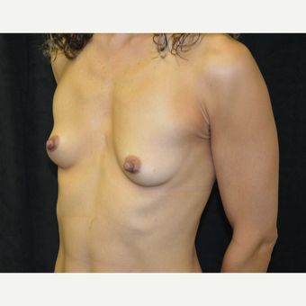 45-54 year old woman treated with Breast Augmentation before 3418132