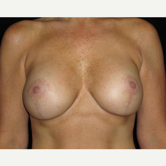 45 year old woman treated with Breast Lift with Implants after 3252376