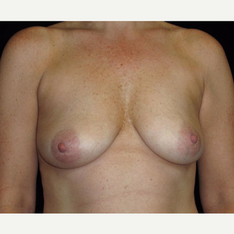 45 year old woman treated with Breast Lift with Implants before 3252376