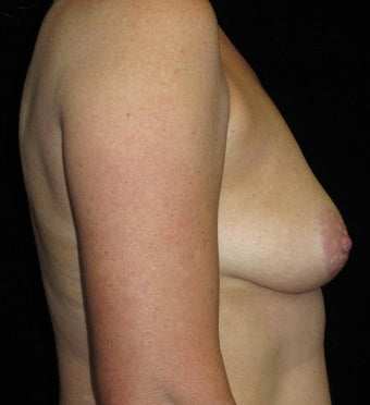 45 year old woman treated with Breast Lift with Implants 3252376