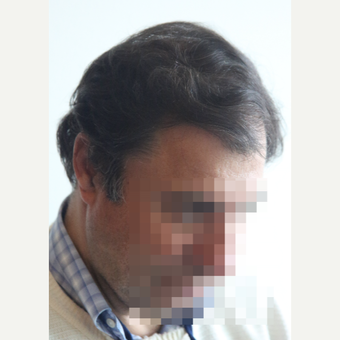 45-54 year old man treated with Hair Transplant after 3069794