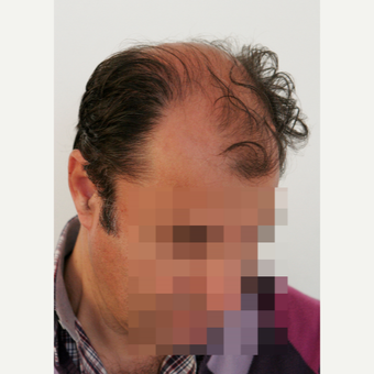 45-54 year old man treated with Hair Transplant before 3069794