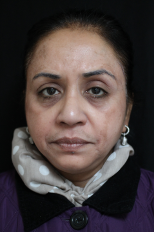 55-64 year old woman treated with Chemical Peel after 2249180