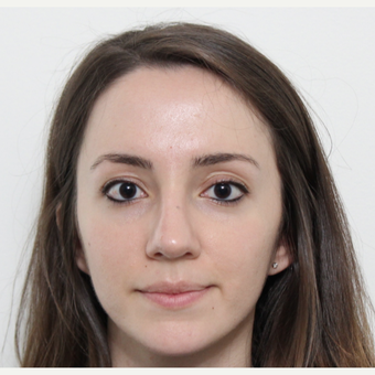 25-34 year old woman treated with Rhinoplasty after 3365886