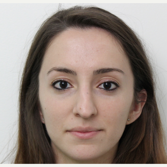 25-34 year old woman treated with Rhinoplasty before 3365886