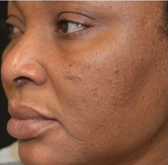 45-54 year old woman treated with Scars Treatment before 1556989