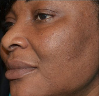 45-54 year old woman treated with Scars Treatment after 1556989