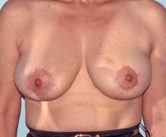 periareolar circular scar breast reduction after 1275703