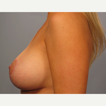 35-44 year old woman treated with Breast Lift with Implants after 3493217