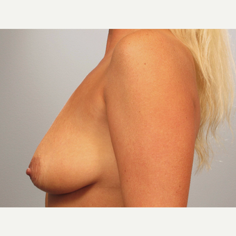 35-44 year old woman treated with Breast Lift with Implants before 3493217