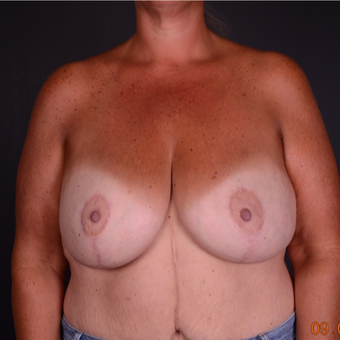 45-54 year old woman treated with Breast Lift with Implants after 3738114