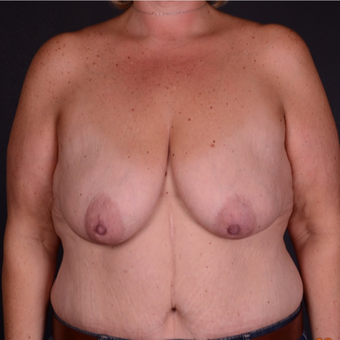 45-54 year old woman treated with Breast Lift with Implants before 3738114