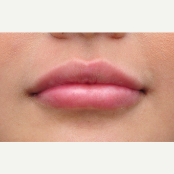 25-34 year old woman treated with Lip Augmentation after 3140384