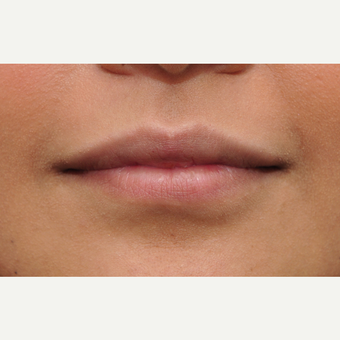 25-34 year old woman treated with Lip Augmentation before 3140384