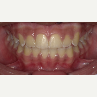 17 or under year old woman treated with Braces after 3663430