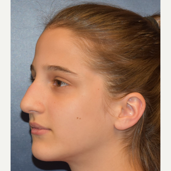 17 or under year old woman treated with Rhinoplasty before 3306019