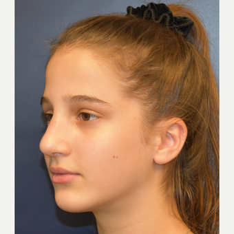 17 or under year old woman treated with Rhinoplasty after 3306019