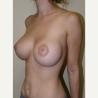 Woman treated with Breast Lift with Implants after 1773438