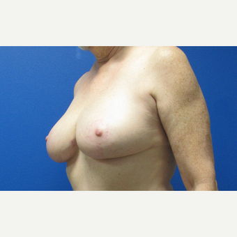 Breast Reduction after 3703792