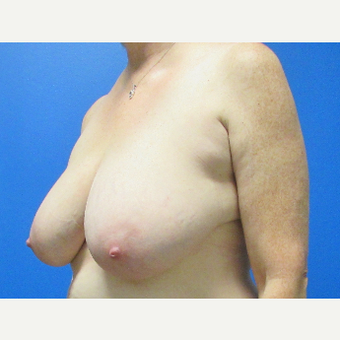 Breast Reduction before 3703792