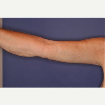 45-54 year old woman treated with Arm Lift after 1538487