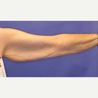 45-54 year old woman treated with Arm Lift 1538487