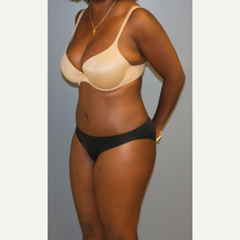 35-44 year old woman treated with Tummy Tuck after 3512761