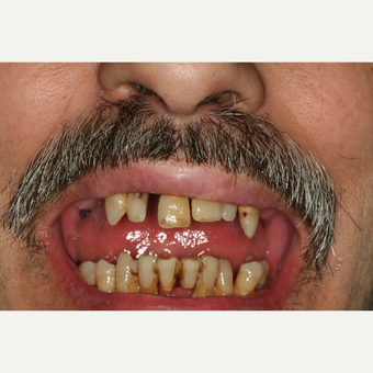 55-64 year old man treated with 6 immediate load Dental Implants before 3541525