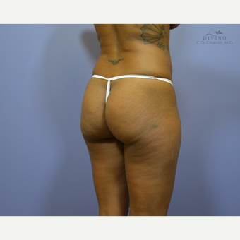 35-44 year old woman treated with Butt Augmentation before 3386617