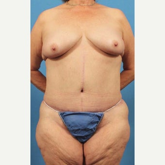 65 year old woman treated with Body Lift after 1768905
