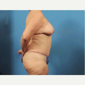 65 year old woman treated with Body Lift 1768905