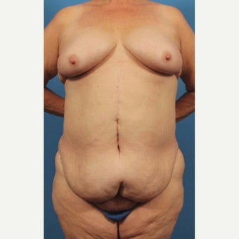 65 year old woman treated with Body Lift before 1768905