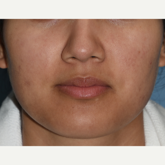 25-34 year old woman treated with Buccal Fat Removal before 3234424