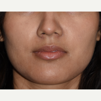 25-34 year old woman treated with Buccal Fat Removal after 3234424