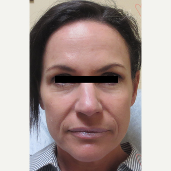 45-54 year old woman treated with Liquid Facelift (Juvederm Ultra Plus, Voluma & Dysport) before 3197762