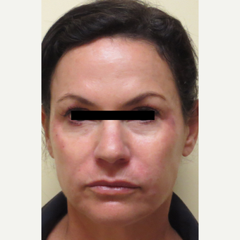 45-54 year old woman treated with Liquid Facelift (Juvederm Ultra Plus, Voluma & Dysport) after 3197762