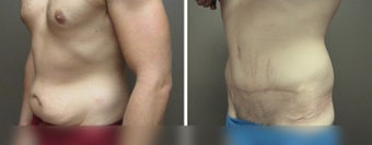 35-44 year old man treated with Tummy Tuck after 3226522