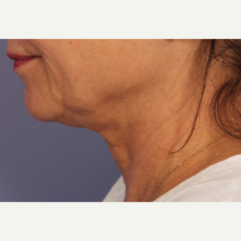 55-64 year old woman treated with Ultherapy after 3697929