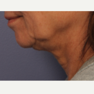 55-64 year old woman treated with Ultherapy before 3697929